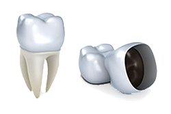 Crowns | General Dentistry of Cape Cod | Dentist Hyannis, MA