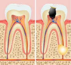 Endodontics | General Dentistry of Cape Cod | Dentist Hyannis, MA