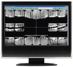 Digital Dental X-Rays | General Dentistry of Cape Cod | Dentist Hyannis, MA
