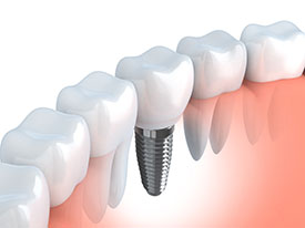 Dental Implants | General Dentistry of Cape Cod, PC | Hyannis, MA